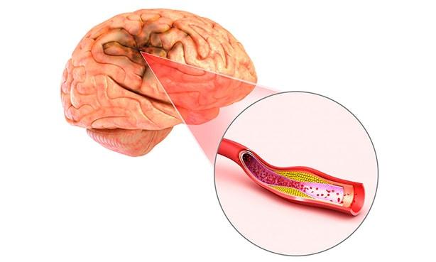 Атеросклеротическая бляшка и головной мозг