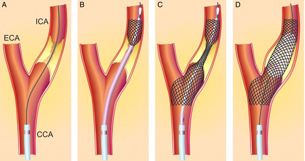 Процесс стентирования артерии