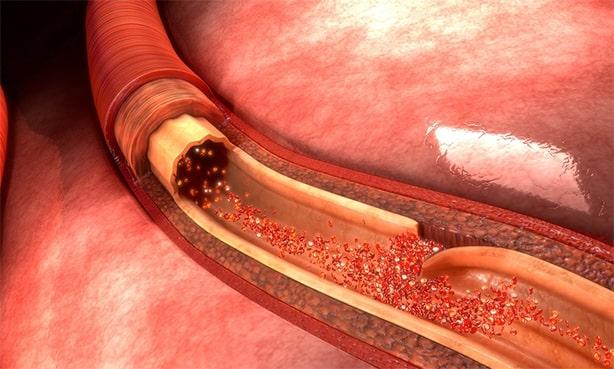 Расслоение артерии