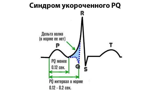Укорочение интервала pq на ЭКГ