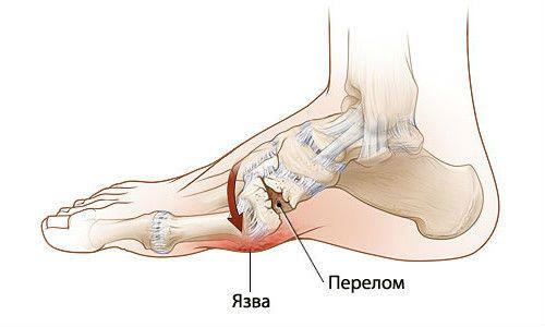 Остеоартопатия