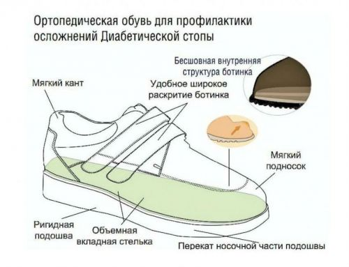 Обувь для диабетика