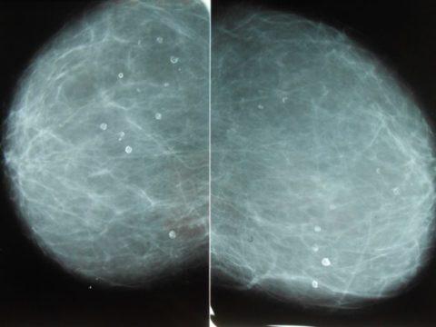 Диагностика кальцинатов в почках на МРТ.