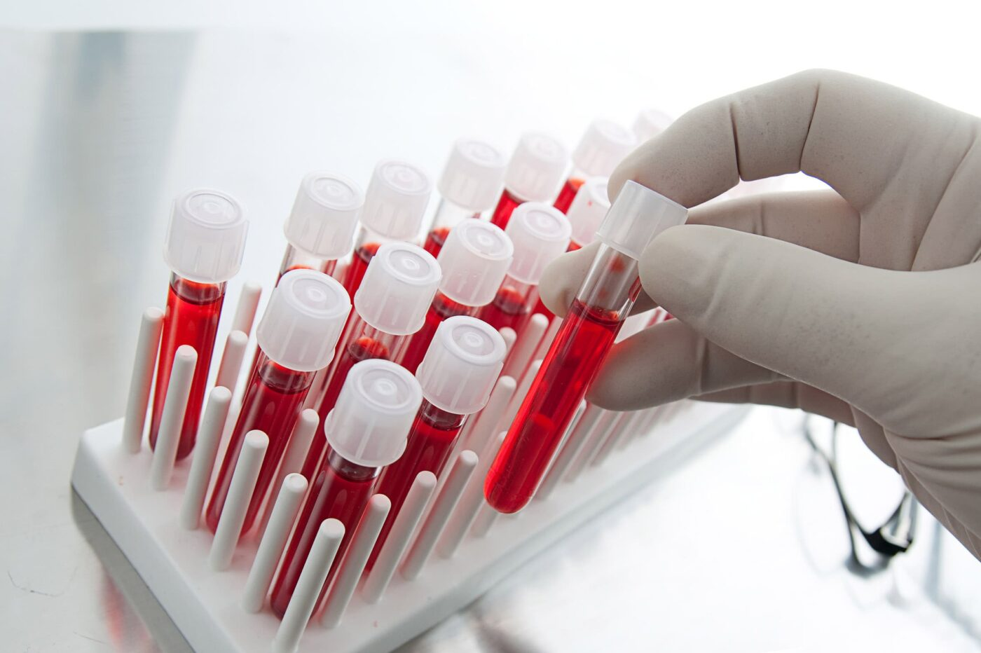 Анализ крови на ИППП