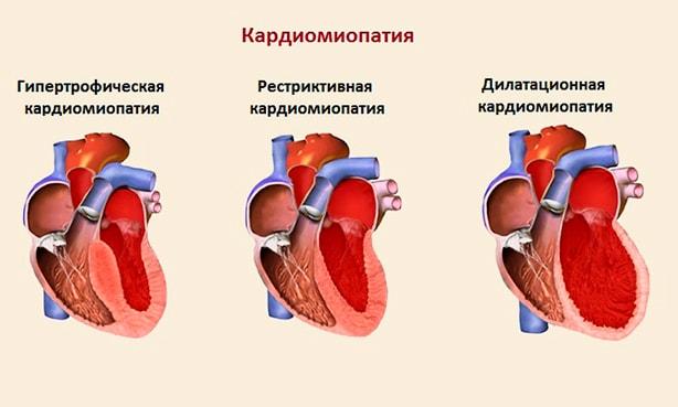 Виды кардиопатий сердца