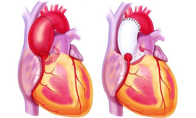 Сердце, после операции на аорте