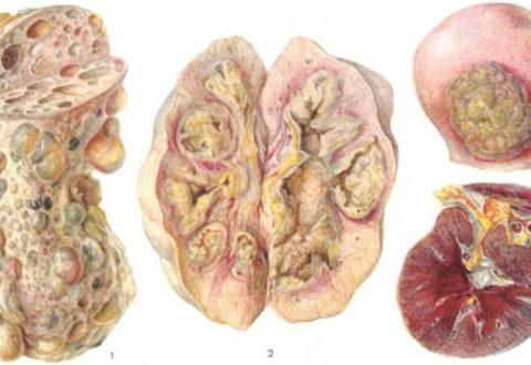 Эмфизематозный пиелонефрит