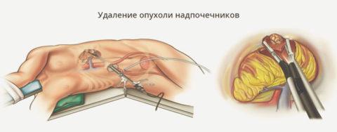 Эндоскопический метод удаления надпочечников имеет свои преимущества и недостатки.