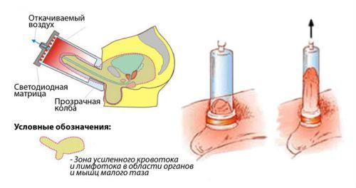 Механизм действия ЛОД-терапии