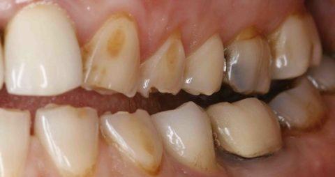 Эрозии зубной эмали