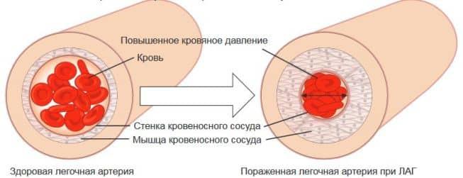 Стенка артерии при высоком давлении