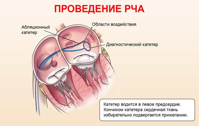 Катетерная аблация, РЧА