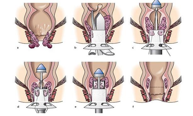 Ход операции геморроидопексии