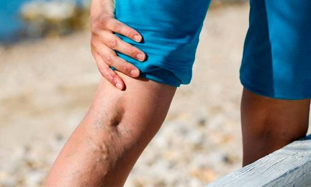Вена на ноге набухла и болит