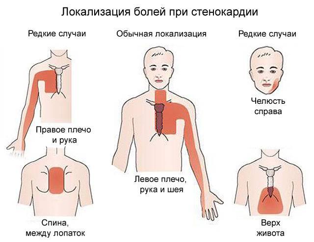 Боли при стенокардии