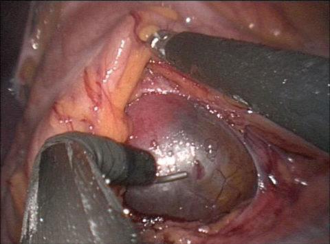 Фото сделанное во время лапароскопии (слева видна киста)