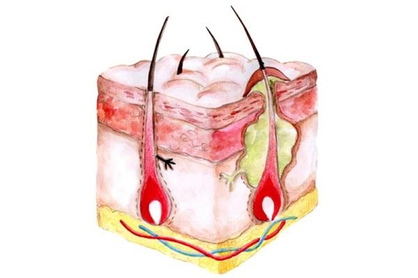 Структура фурункула на лице