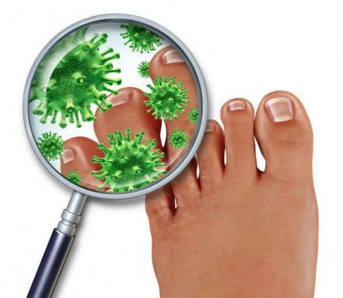 Инфекция ног