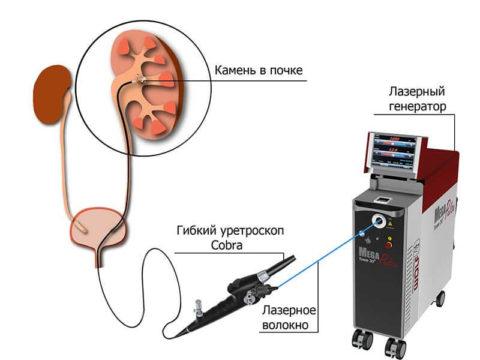 Гибкий уретроскоп со встроенным лазером вводится в уретру и по мочевыводящим путям продвигается в почку.