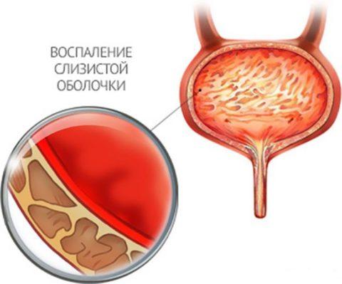 Хроническое воспаление мочевого пузыря характеризуется периодическими обострениями заболевания и ведет к стойким изменениям функций органа.