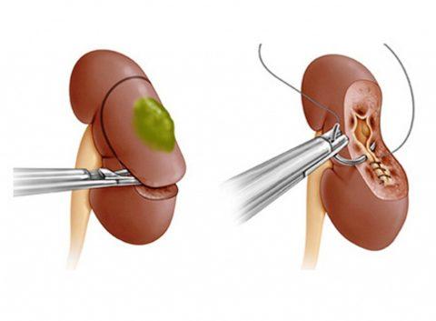 Исходя из ситуации орган может удаляться полностью или частично