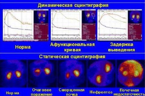Исследование позволяет выявить различные патологии