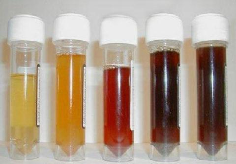 Изменение цвета и плотности урины может свидетельствовать о наличии серьезной патологии, а может стать реакцией организма на прием некоторых препаратов и продуктов питания.