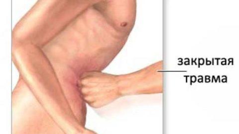 К разрыву органа приводят внешние механические воздействия