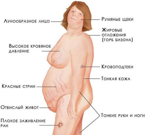 Клинические проявления болезни Иценко-Кушинга