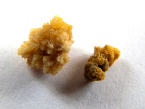Коралловидные камни — один из видов почечных конкрементов