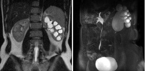 КТ или МР-урография