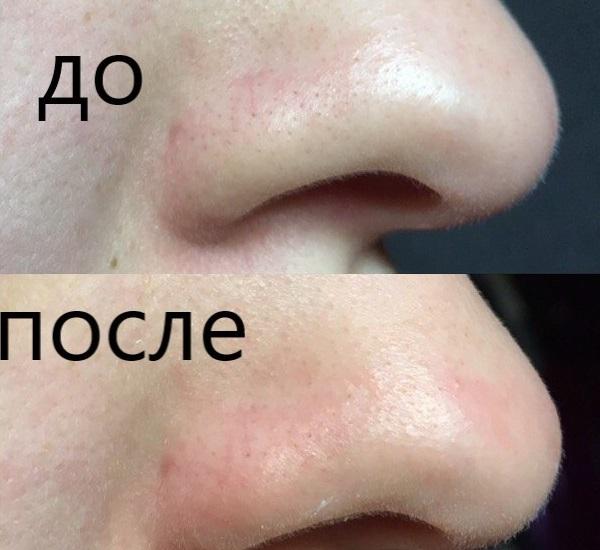 Фото ДО и ПОСЛЕ применения маски Lanbena от черных точек