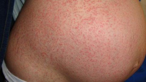 Лекарственные мочегонные травы могут вызвать аллергию