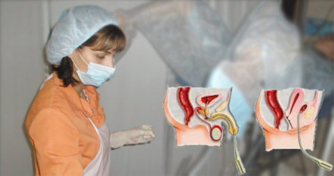 Манипуляция промывания мочевого пузыря должна производиться квалифицированным медработником.