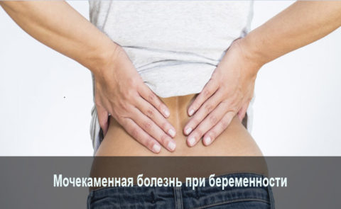 Мочекаменная болезнь может возникнуть при беременности из-за застоя мочи в органах мочевыделения.