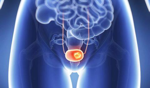 Мочевой пузырь играет важную роль в нормальной жизнедеятельности организма