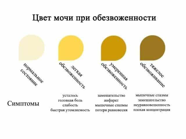 Цвет мочи в зависимости от степени обезвоженности