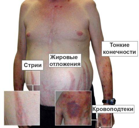 На фото пациент с явными признаками синдрома Иценко-Кушинга.