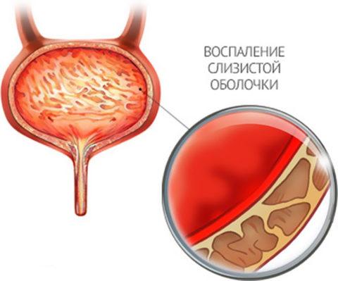 На фото показаны изменения в мочевом пузыре при цистите.