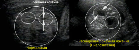 На фото представлен снимок УЗИ, четко показывающий сравнение здоровой почки и почки при пиелоэктазии.