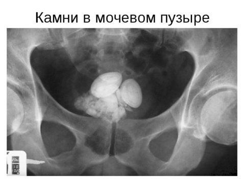 На фото рентген снимок мочевого пузыря, где ярко визуализируется наличие камней.