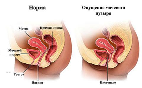 Наглядный пример как выглядит здоровый и больной орган