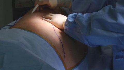 Нефрэктомия проводится в урологическом стационаре