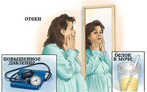 Нефропатия при беременности
