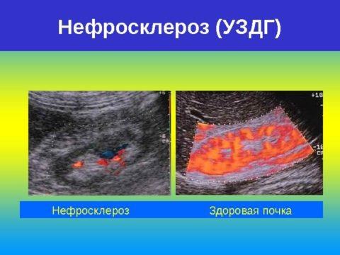 Нефросклероз способствует сморщиванию почек, что приводит к почечной недостаточности.