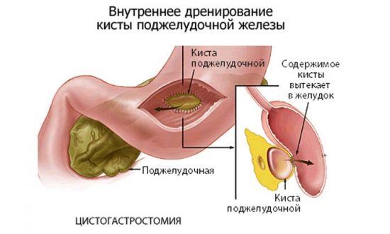 дренирование поджелудочной железы