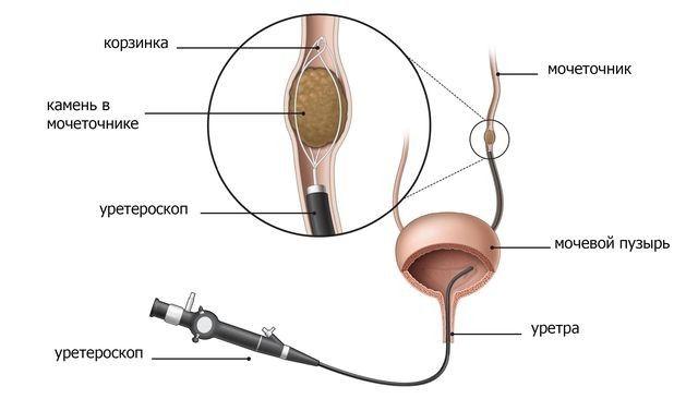 Эндоскопические операции по удалению камней из почек
