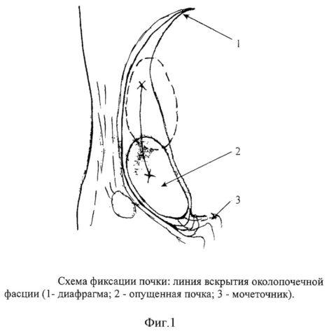 Операция для фиксации почки называется нефропексия
