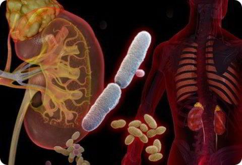 Осложнения хронического пиелонефрита