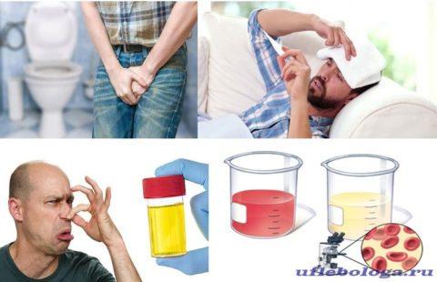 Острая форма воспаления сопровождается ярко выраженной симптоматикой.